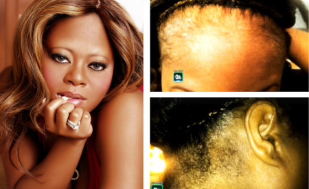 Countess-Vaughn-Reveals-Suffering-From-Scalp-Infections-Due-To-Lace-Wigs-450x275